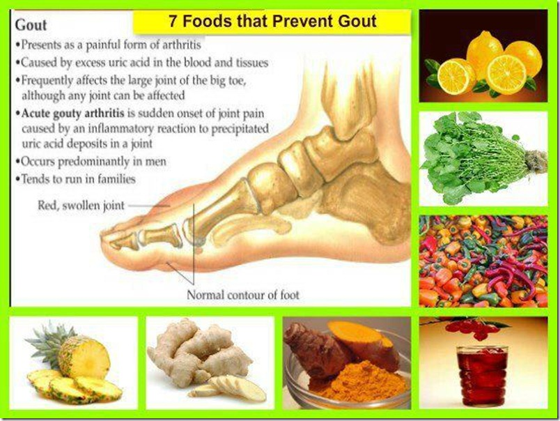 Foods That Prevent Gout